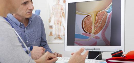 Prostata 520x245 - Ratgeber zur Prostata